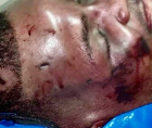 """Ronald Greene """"tortured"""" by Louisiana State Police"""