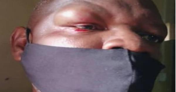 attack on two reporters (including Francis Maingaila above)